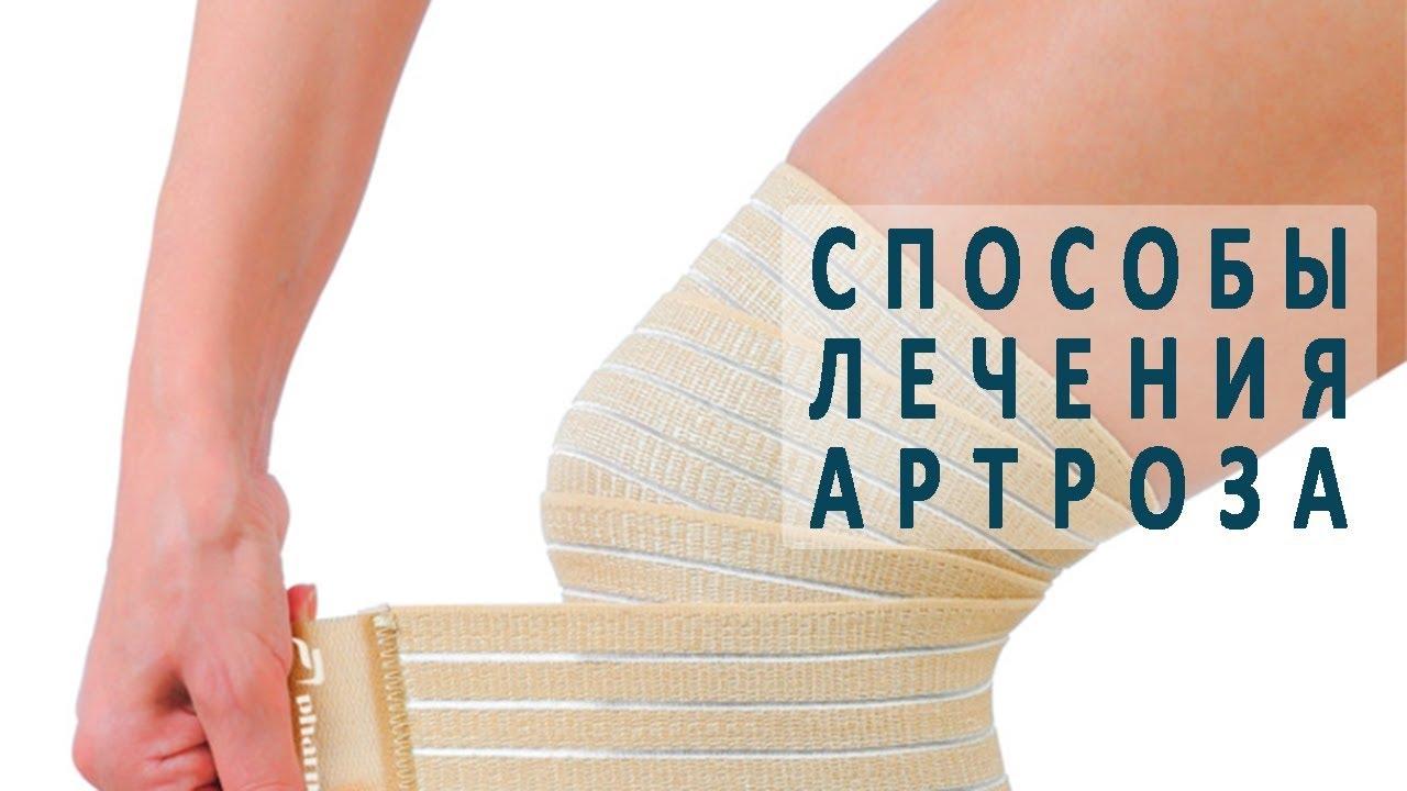 Лечить артроз коленного сустава медикаментозное лечение thumbnail
