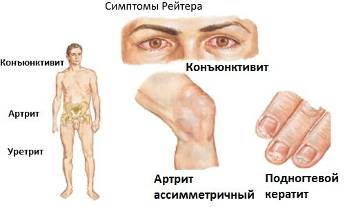 Симптоматика синдрома Рейтера по половому признаку и лечение