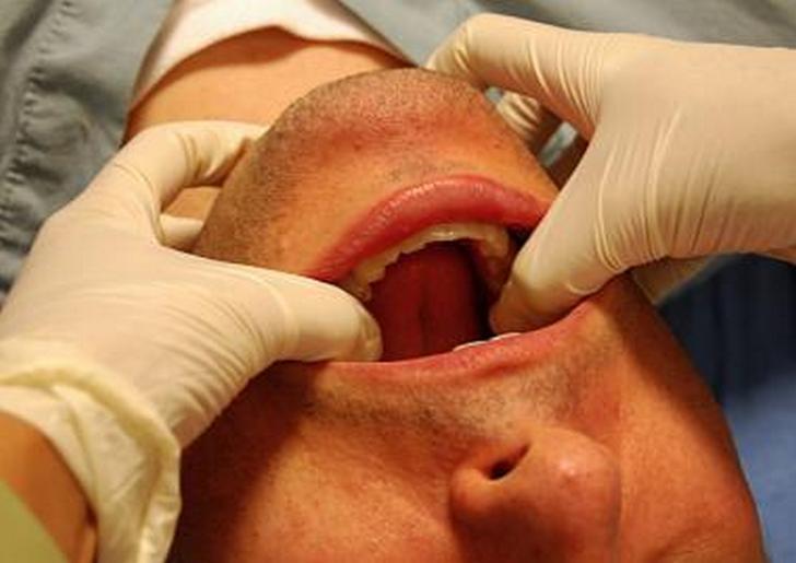 Симптомы и лечение артроза челюстно лицевого сустава