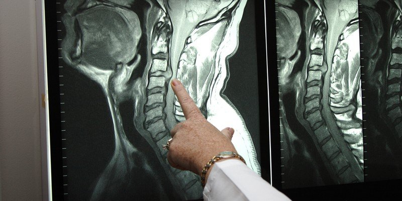 Симптомы и лечение нестабильности шейных позвонков