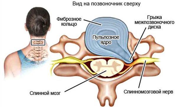 Симптомы и методы лечения грыжи шейного отдела позвоночника