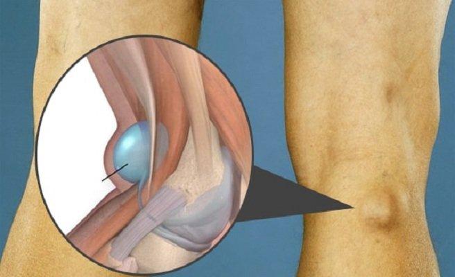 Симптомы и методы лечения кисты Бейкера коленного сустава