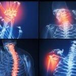Симптомы и особенности лечения остеопороза у женщин