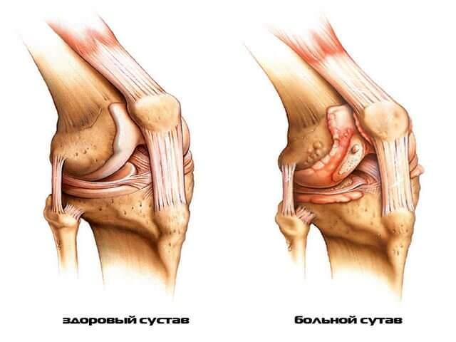Симптомы и способы лечения ревматоидного артрита коленного сустава