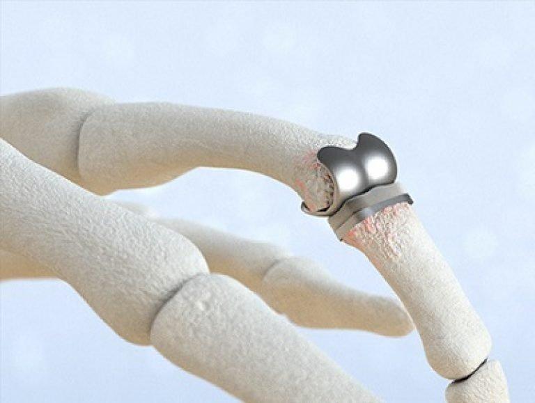 Симптомы, лечение и диагностика Недифференцированного артрита