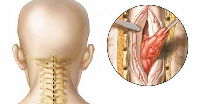 Основные симптомы и признаки рака позвоночника и способы его лечения
