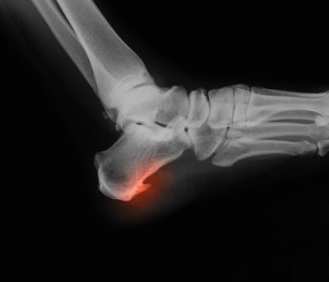 Сколько стоит медицинская желчь и как с ее помощью вылечить суставы