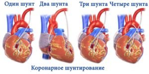 Состав и лечебное действие препарата Эторикоксиб