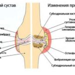 Список нестероидных противовоспалительных препаратов для лечения суставов и их аналогов