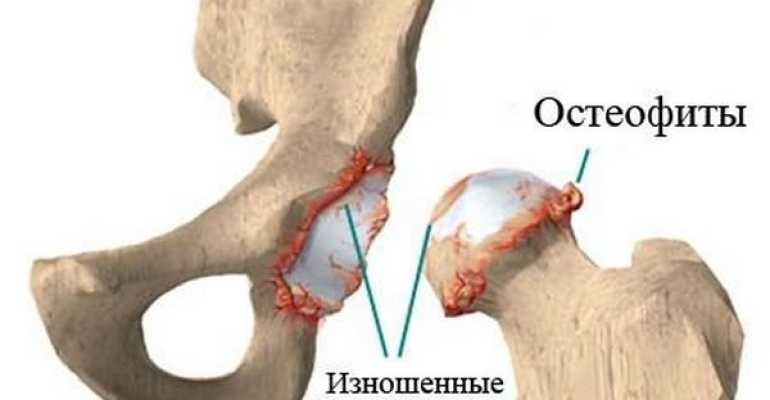 Артроз тазобедренного сустава - лечение в домашних условиях