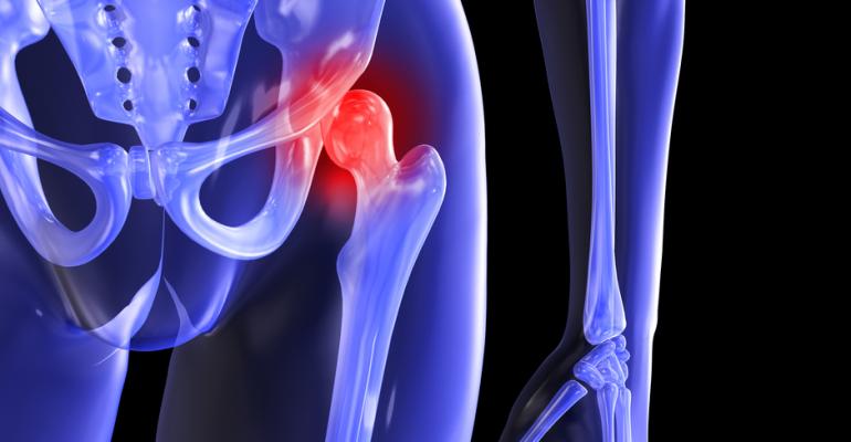 Народное лечение коксартроза тазобедренного сустава 2 степени