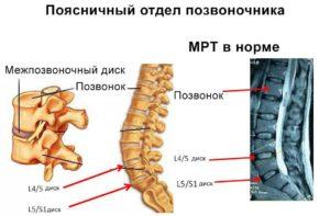 Способы устранения боли при грыже поясничного отдела позвоночника
