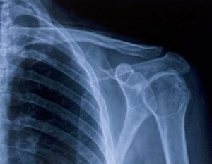 Упражнения для лечения и профилактики артроза плечевого сустава
