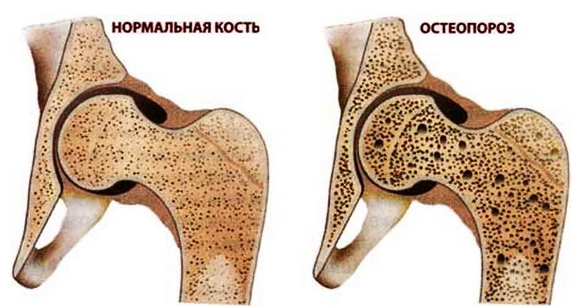 Важность своевременной и точной диагностики остеопороза