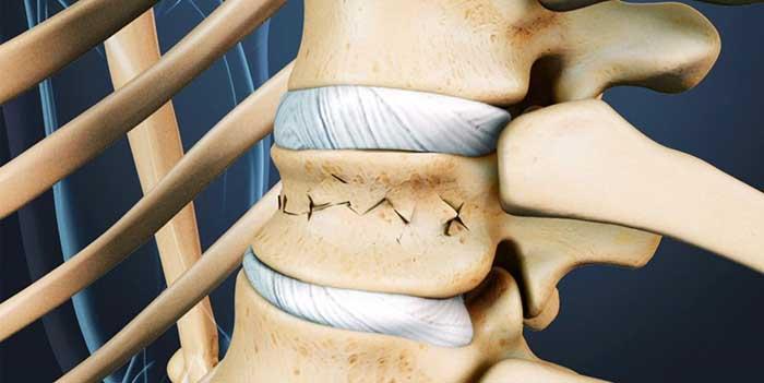 Виды корсетов после компрессионного перелома позвоночника