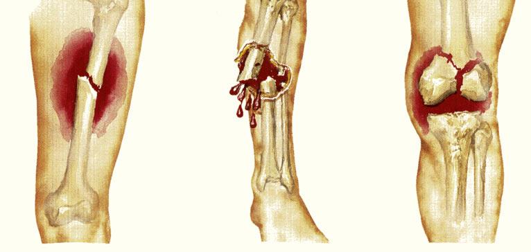 Виды перелома ноги, диагностика и методы лечения