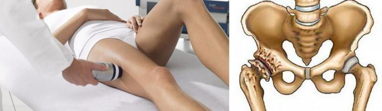 Возможно ли лечение коксартроза тазобедренного сустава 4 степени без операции