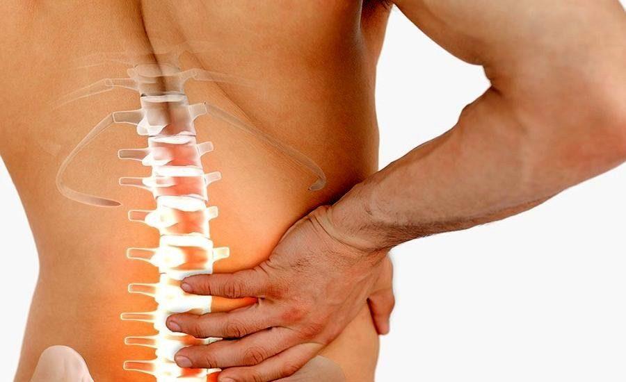 Все о симптомах и лечении корешкового синдрома поясничного отдела