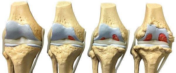 Все плюсы и минусы лазеротерапии при артрозе коленного сустава
