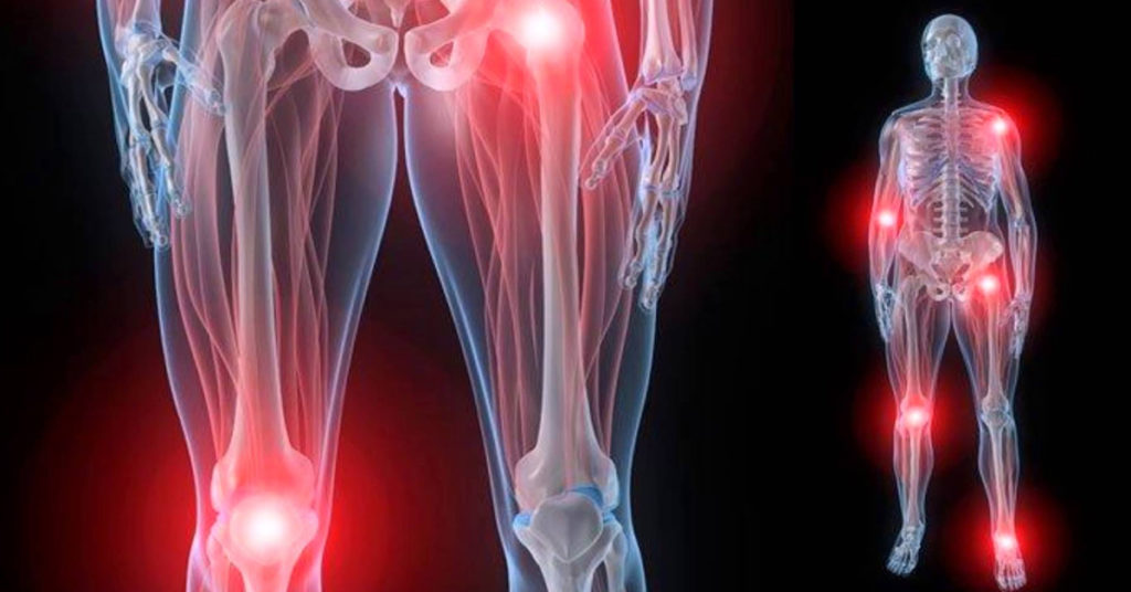 Является ли приговором развитие в костях метастаз